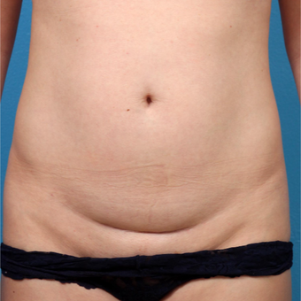 25-34 year old woman treated with Liposuction before 3245751