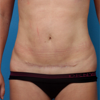 25-34 year old woman treated with Liposuction after 3245751