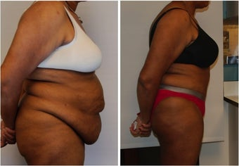 Large Abdominoplasty 3 months before and after before 814488