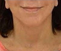 55-64 year old woman treated with Neck Lift after 3482897