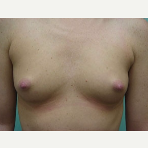 35-44 year old woman treated with Breast Augmentation before 3168085