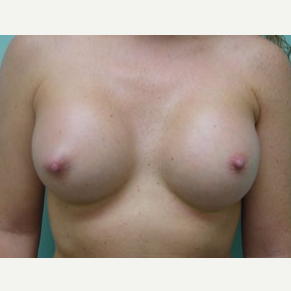 35-44 year old woman treated with Breast Augmentation after 3168085