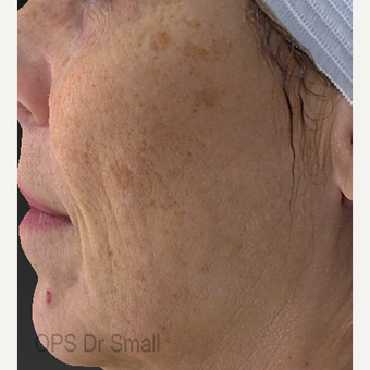 55-64 year old woman treated with Laser Treatment before 3305863