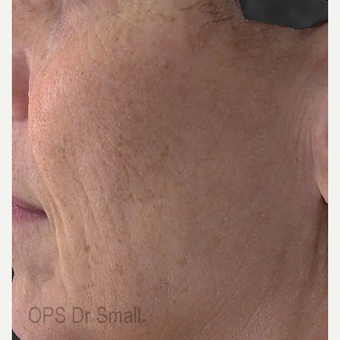 55-64 year old woman treated with Laser Treatment after 3305863