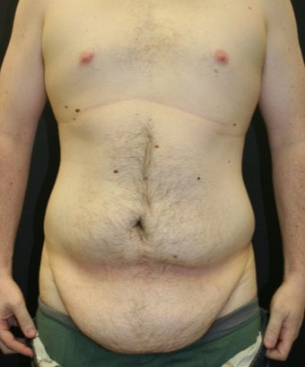 25-34 year old man treated with Male Tummy Tuck 1706261