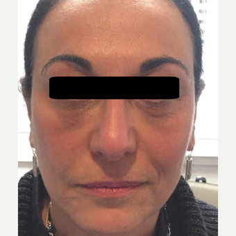 45-54 year old woman treated with Non Surgical Face Lift using dermal fillers and botox. after 3725761