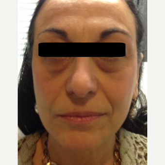 45-54 year old woman treated with Non Surgical Face Lift using dermal fillers and botox. before 3725761