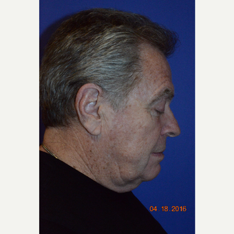 65-74 year old man treated with Face & Neck Lift before 3226892