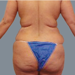 Brazilian Butt Lift with fat grafting