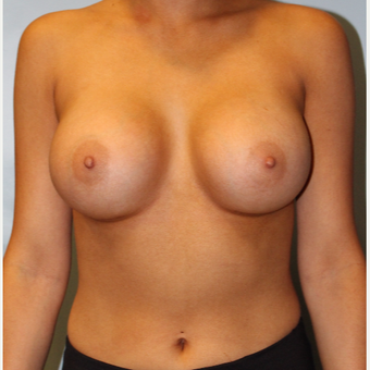 25-34 year old woman treated with Breast Implants after 3754168