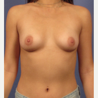 25-34 year old woman treated with Breast Implants before 3754168