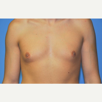 Bilateral Gynecomastia Correction before 2969834