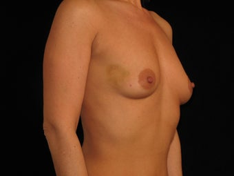 Bilateral Breast Augmentation 316790