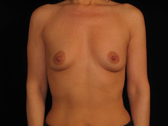 Bilateral Breast Augmentation before 316790