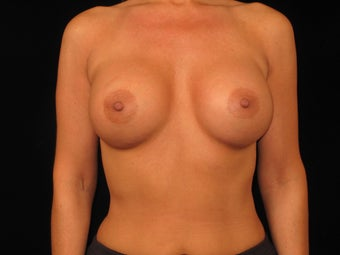 Bilateral Breast Augmentation after 316790