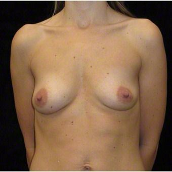 26 year old woman treated with Breast Augmentation before 3103598