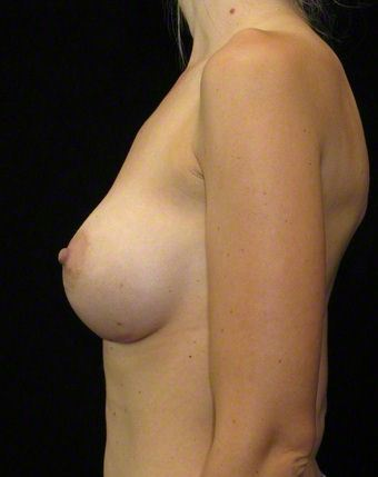 26 year old woman treated with Breast Augmentation 3103598