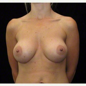 26 year old woman treated with Breast Augmentation after 3103598