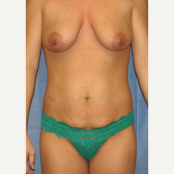 25-34 year old woman treated with Mommy Makeover before 3180171