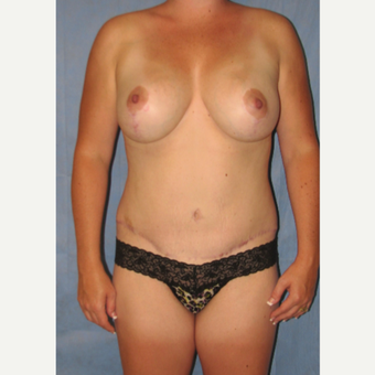 25-34 year old woman treated with Mommy Makeover after 3180171