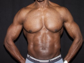 Extremely Fit 56-year old male seeking Laser Liposuction