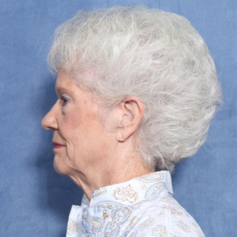 75 and up year old woman treated with Neck Lift (view 2 of 2) before 3175806