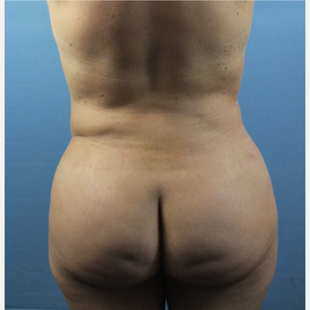 35-44 year old woman treated with Brazilian Butt Lift after 3141326