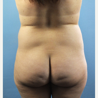 35-44 year old woman treated with Brazilian Butt Lift before 3141326