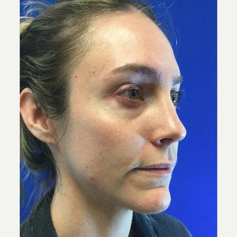 35 Year Old Woman Received Juvederm Cheek Augmentation To Improve Under Eye Hollows before 2074937
