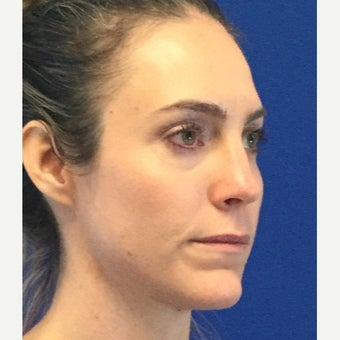 35 Year Old Woman Received Juvederm Cheek Augmentation To Improve Under Eye Hollows after 2074937