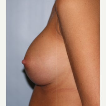 25-34 year old woman treated with Breast Implants after 2543856