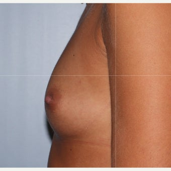 25-34 year old woman treated with Breast Implants before 2543856