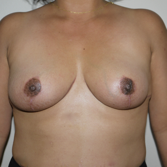 35-44 year old woman treated with Breast Implant Removal after 3011744