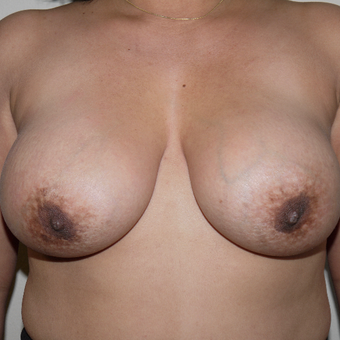 35-44 year old woman treated with Breast Implant Removal before 3011744