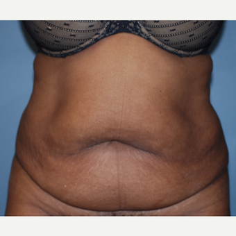 45-54 year old woman treated with Tummy Tuck before 3609764