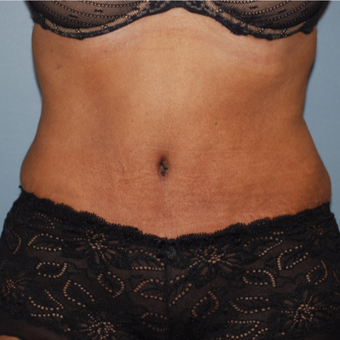 45-54 year old woman treated with Tummy Tuck after 3609764