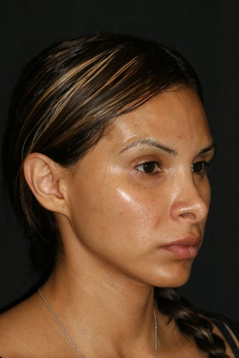 Rhinoplasty revision  428226
