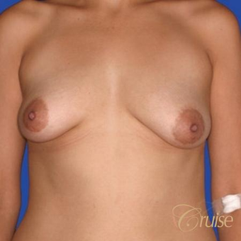 Lollipop Breast Lift performed on a 39 year old patient before 3501337