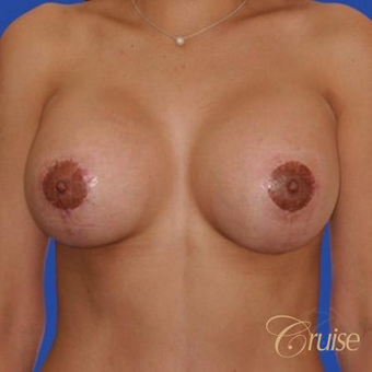 Lollipop Breast Lift performed on a 39 year old patient after 3501337
