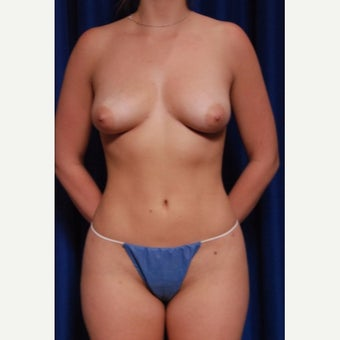 25-34 year old woman treated with Breast Implant Removal after 2652482