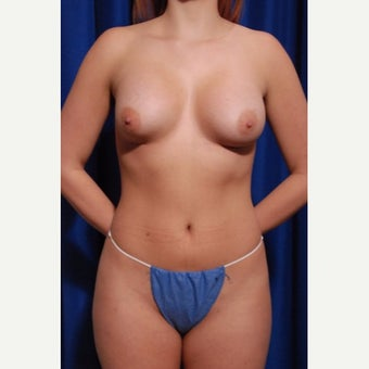 25-34 year old woman treated with Breast Implant Removal before 2652482