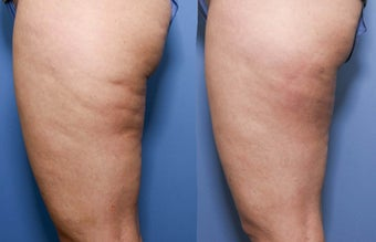 37 year old with cellulite after 680228