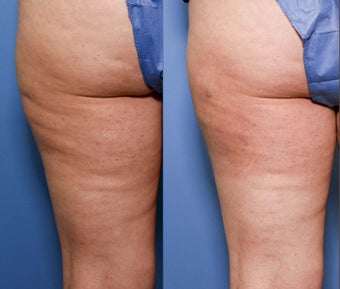 37 year old with cellulite before 680228