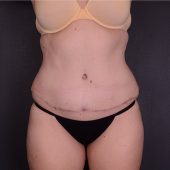 25-34 year old woman treated with Tummy Tuck after 3741624