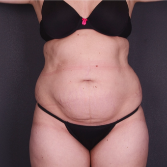 25-34 year old woman treated with Tummy Tuck before 3741624