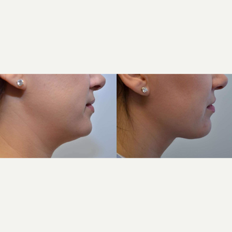 Necklift - 35 year old female with concerns of double chin before 3084040