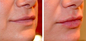 35-44 year old woman treated with Lip Augmentation before 2165295