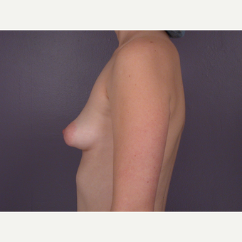 18-24 year old woman treated with Breast Augmentation before 3278101