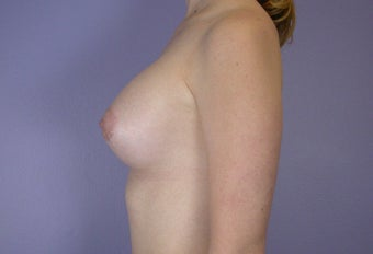 18-24 year old woman treated with Breast Augmentation after 3278101