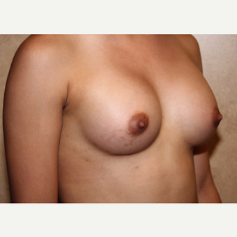 Saline Implants - Breast Augmentation after 3324921